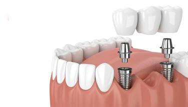 implante-dental-vina-del-mar
