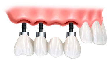 implante-punte-sobre-implante