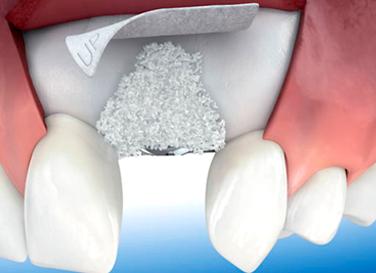 injerto-hueso-dental