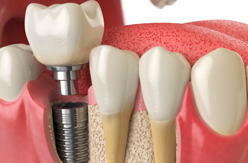 rehabilitacion-sobre-implantes
