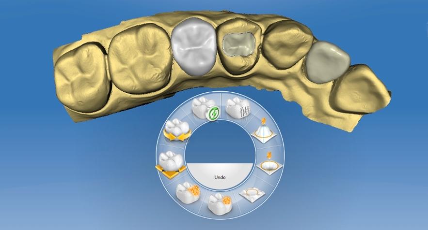 preparacion-dental-cerec